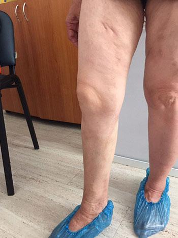 Лазерна аблация - лечение Доктор Анастасов